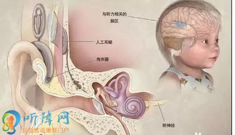 人工耳蜗植入有年龄限制吗?